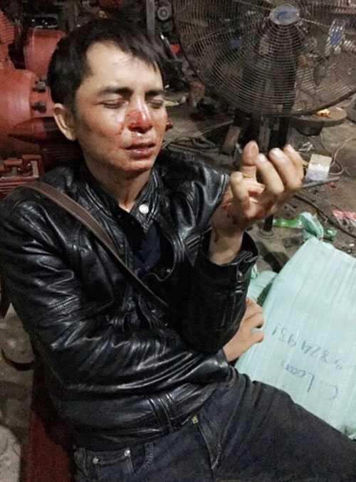 Anh Trần Hoài Nam kể lại vụ việc