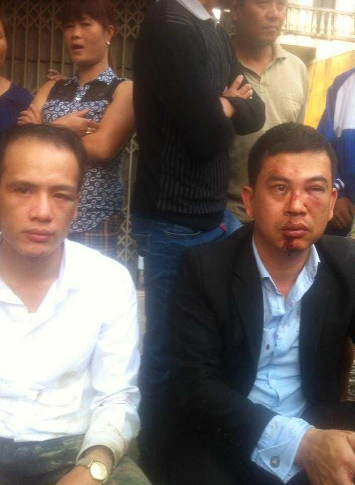 Luật sư Trần Thu Nam và luật sư Lê Văn Luân sau khi bị hành hung tại xã Đông Phương Yên (huyện Chương Mỹ, Hà Nội) vào chiều 3/11. Ảnh: Facebook luật sư Trần Thu Nam