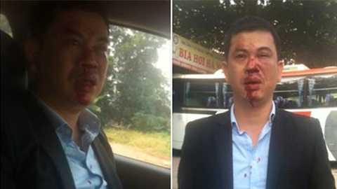 Hình ảnh luật sư Trần Thu Nam bị thương tích sau khi bị nhóm lạ mặt hành hung