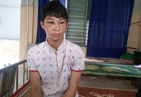 Em Nguyễn Đức Phú đang điều trị tại bệnh viện huyện Tuyên Hóa, Quảng Bình.