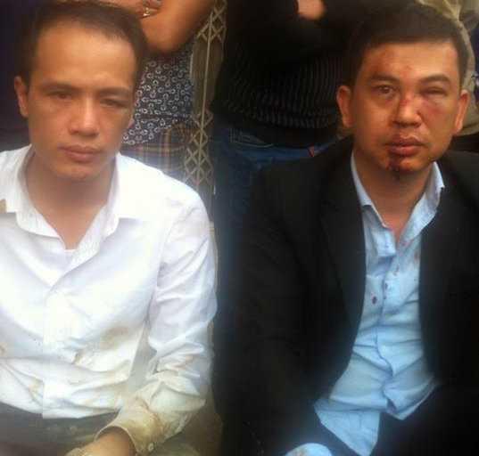Hai luật sư bị đánh - Ảnh: Facebook