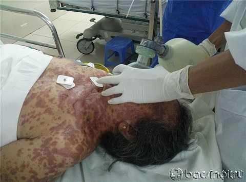 Bệnh nhân bị hoại tử biểu mô nhiễm độc.