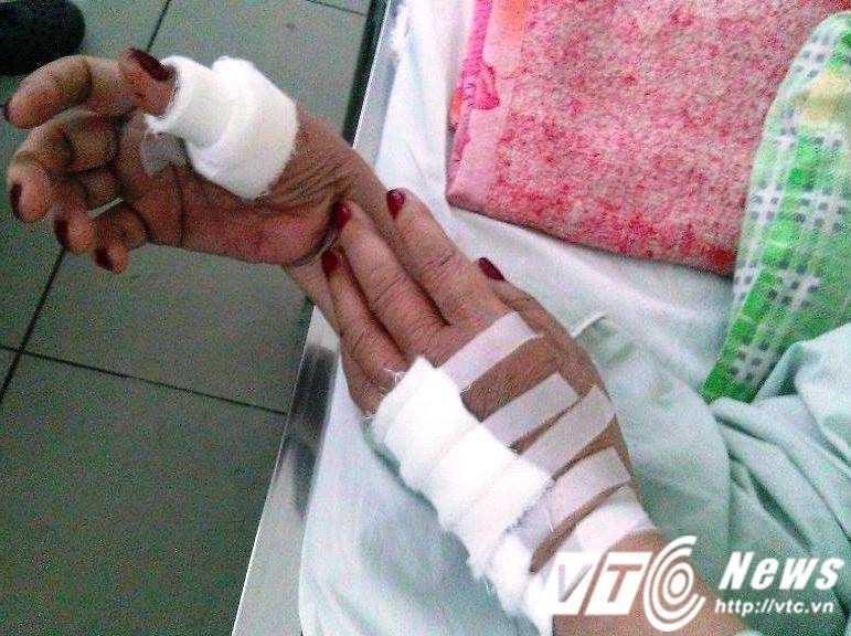Bà L.T.H đã được các bác sĩ tiến hành nối ngón và gân tay và hiện vẫn đang điều trị tại bệnh viện.