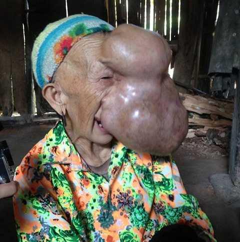 Bà Triệu Mùi Chài, 62 tuổi với khối u to trực nổ tung. Ảnh: Hoài Phương
