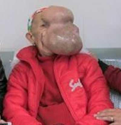 Bà Chài tại viện Răng hàm mặt TW