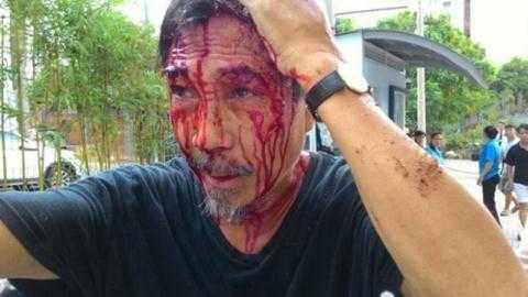 Ông Phan Thế Tú bị côn đồ đánh chảy máu đầu, gẫy xương sườn.