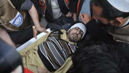 Nạn nhân sau vụ tấn công. Ảnh: BBC