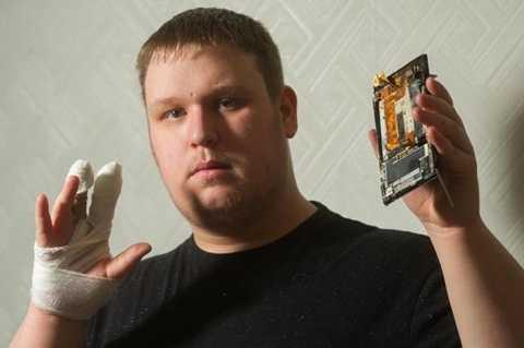 Grant Eger bị thương do điện thoại phát nổ trên tay