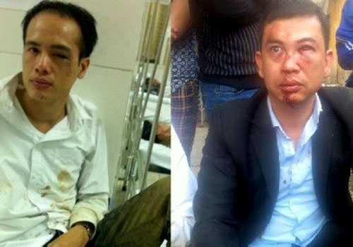 Ông Luân (trái) và ông Nam sau khi bị hành hung chiều 3/11/2015.