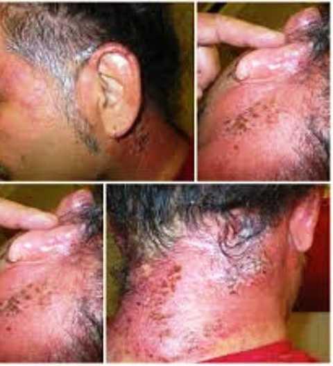 Lở loét da đầu vì dùng thuốc dởm