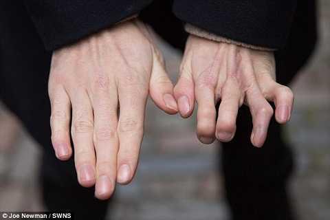 Bàn tay mới được thay thế của Richard