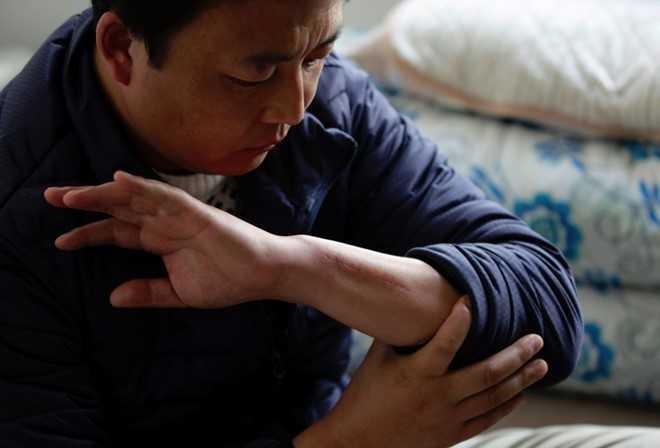 Zhang Wenkun chỉ vết sẹo trên tay vì bị thương trong khi làm việc. Ảnh: Bloomberg