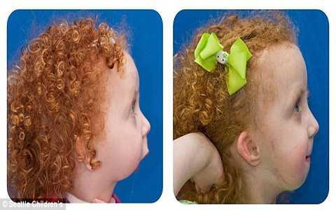 Từ khi sinh ra Lexi đã không có xương hàm dưới và phải trải 11 ca phẫu thuật. Ảnh Daily Mail