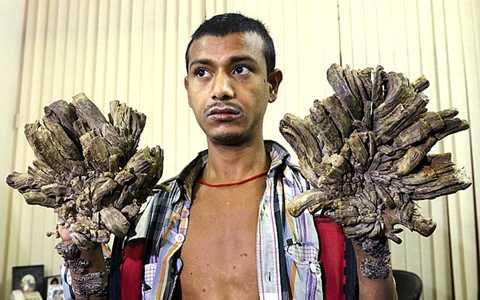 Anh Abdul trước khi phẫu thuật