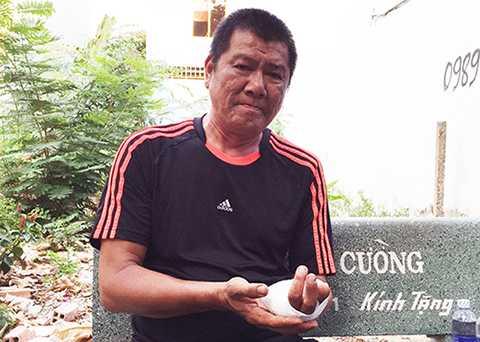 Ông Thuận bị chém mất hai ngón tay. Ảnh: Hải Hiếu
