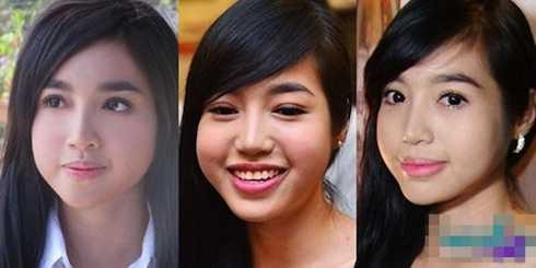 Đôi má phù nề của Elly Trần khiến nhiều người cho rằng cô đã lạm dụng botox để căng da.