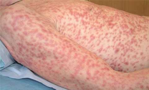 Giang mai gây ra hiện tượng nổi mề đay, u cục trên da, các mề đay nổi thành từng mảng trên khắp cơ thể.