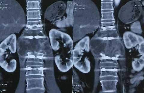 Hình ảnh khối u chèn ép cột sống