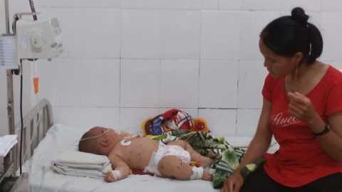 Người thân chăm sóc bé Phước tại bệnh viện Ảnh:Thanh Hải