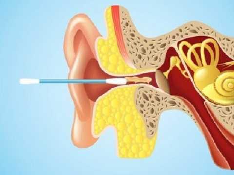 Bông ngoáy tai đâm vào sâu có thể làm tổn thương đến ống tai, màng nhĩ của bạn. Ảnh Businessinsider