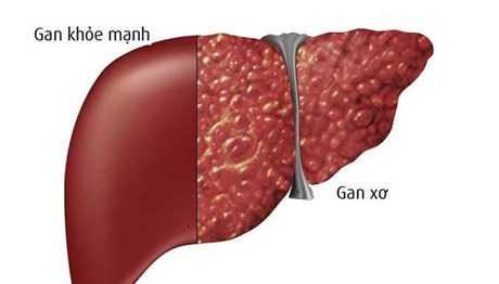 Gan bị tổn thương gây ra nhiều bệnh nếu không phát hiện kịp thời.