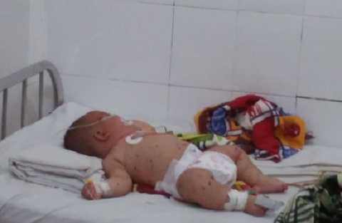 Hiện tại bé Phước đang điều trị phòng cách li tại bệnh viện. Ảnh:Thanh Hải