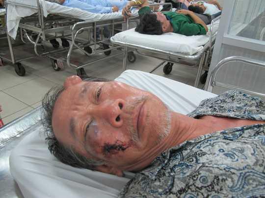 Ông Đại bị đánh bầm mắt, chấn thương đầu và vai