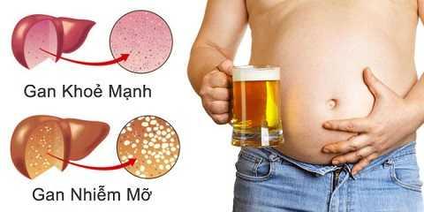 Uống nhiều bia rượu dễ mắc bệnh gan.