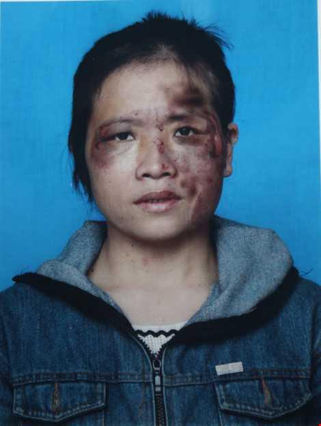 Chị Hồng cung cấp hình ảnh chị bị chồng bạo hành cắt tóc, nướng bát inox chà vào mặt.