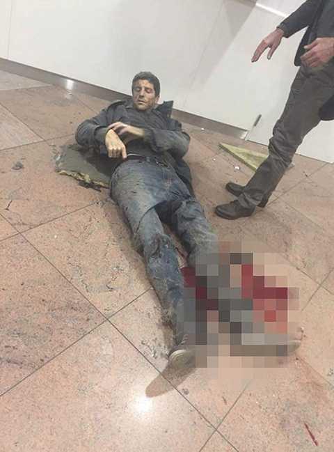 Một người đàn ông bị thương nặng ở chân sau khi không may có mặt tại hiện trường
