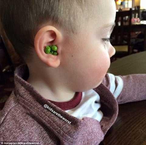 Chỉ vì không thích ăn đỗ mà đứa trẻ này đã cho chúng vào tai mình để giấu bố mẹ