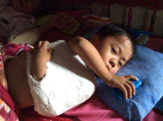 Hiện tại sức khỏe của cháu Hải đã ổn định hơn nhưng vẫn phải nằm một chỗ, chưa thể đi lại.
