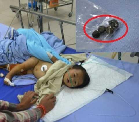 Bé yến đang điều trị tại bệnh viện