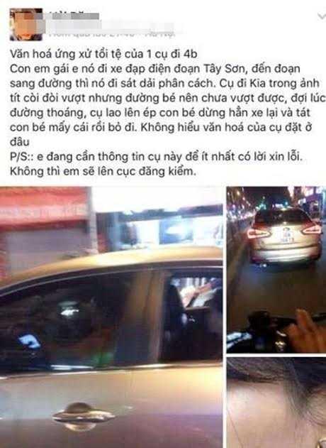 Anh trai to tai xe xe hoi tat tui bui em gai vi 'khong nhuong duong' hinh anh 1