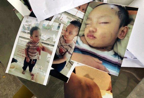 Me to con gai bao hanh chau ngoai: Cong an Binh Duong chi dao dieu tra hinh anh 1