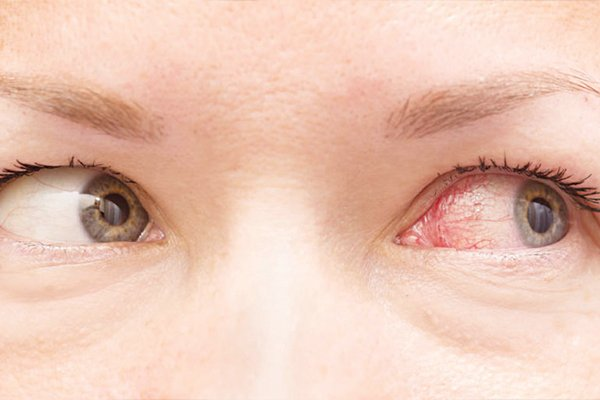 Nhiễm trùng mắt là do dùng quá nhiều mỹ phẩm đắp lên mắt