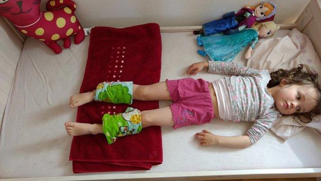 Buộc khăn bắp chân - Phương pháp hạ sốt cho con của mẹ Đức, các mẹ đã biết chưa? - Ảnh 1.