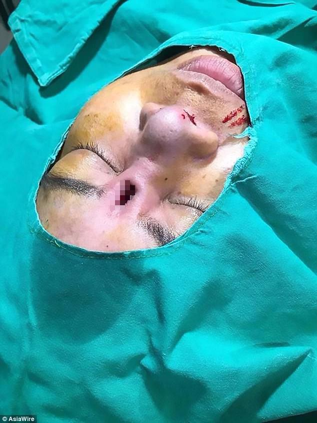 Đi phẫu thuật nâng mũi giá rẻ, người phụ nữ đau đớn khi thấy miếng silicon lòi hẳn ra ngoài - Ảnh 2.