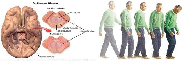 Dau hieu cho thay benh Parkinson co the chua tri duoc hinh anh 2