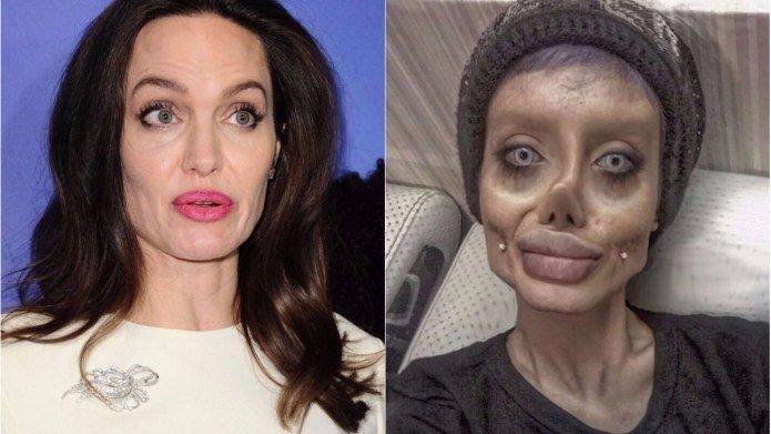 After-50-Surgeries-Iran-Teen-Sahar-Tabar-Look-Like-Angelina-Jolie