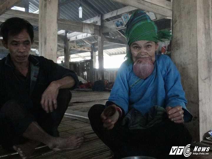 Ba cu o Ha Giang co chiec luoi khong lo: Can khan truong dua di kham hinh anh 1