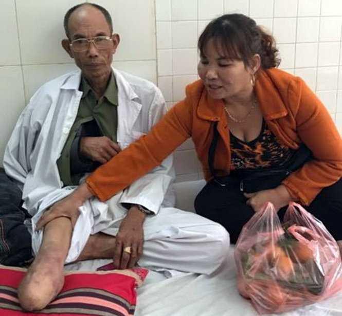 Hanh hung thuong binh sau va cham giao thong: Khoi to them mot bi can hinh anh 1