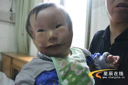 Hoi chung la, me chet lang khi sinh con '2 mat' hinh anh 1