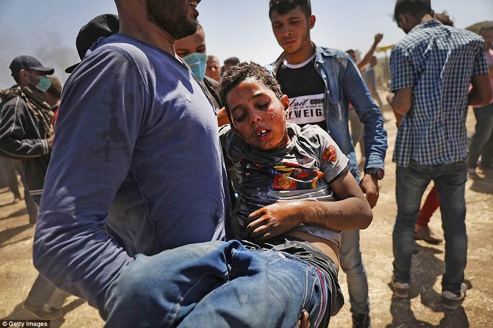 Anh: 'Ngay Thu Hai dam mau' tren dai Gaza, hang nghin nguoi thuong vong hinh anh 6