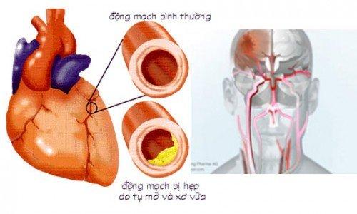 An uong tot, nguoi khoe manh… bong choc 'song chung' voi benh? hinh anh 1