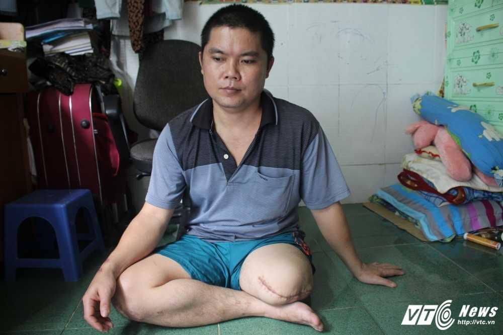 Nam thanh nien bi cua cut chan to benh vien tac trach: So Y te Dong Nai ket luan the nao? hinh anh 1