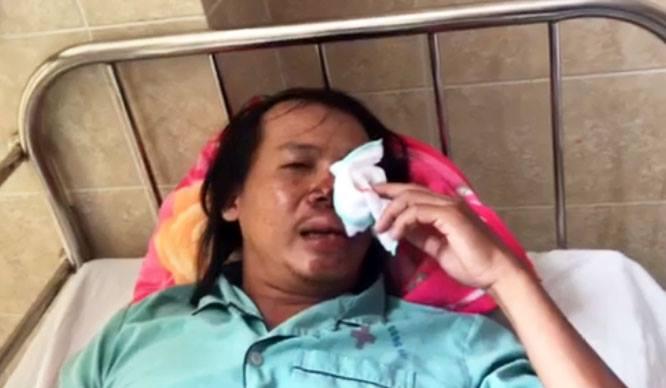 Hiep si Dong Nai bi nhom trom cho dung sung dien ban trong thuong hinh anh 1