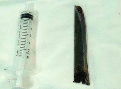 Choang voi luoi dao 12cm nam trong lung benh nhan nhieu nam nhung khong biet hinh anh 2