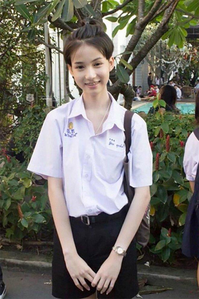 Hoa hau chuyen gioi Thai Lan tung bi bo me phan doi phau thuat hinh anh 4