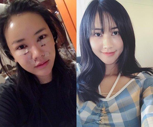 6 sao Viet cong khai thua nhan phau thuat tham my trong nam 2017 hinh anh 2